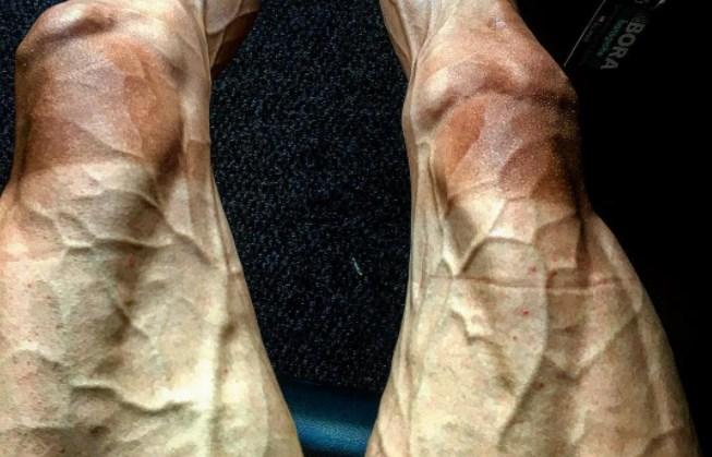 Како изгледаат нозете после 16 етапи на точак на Тур Д  Франс